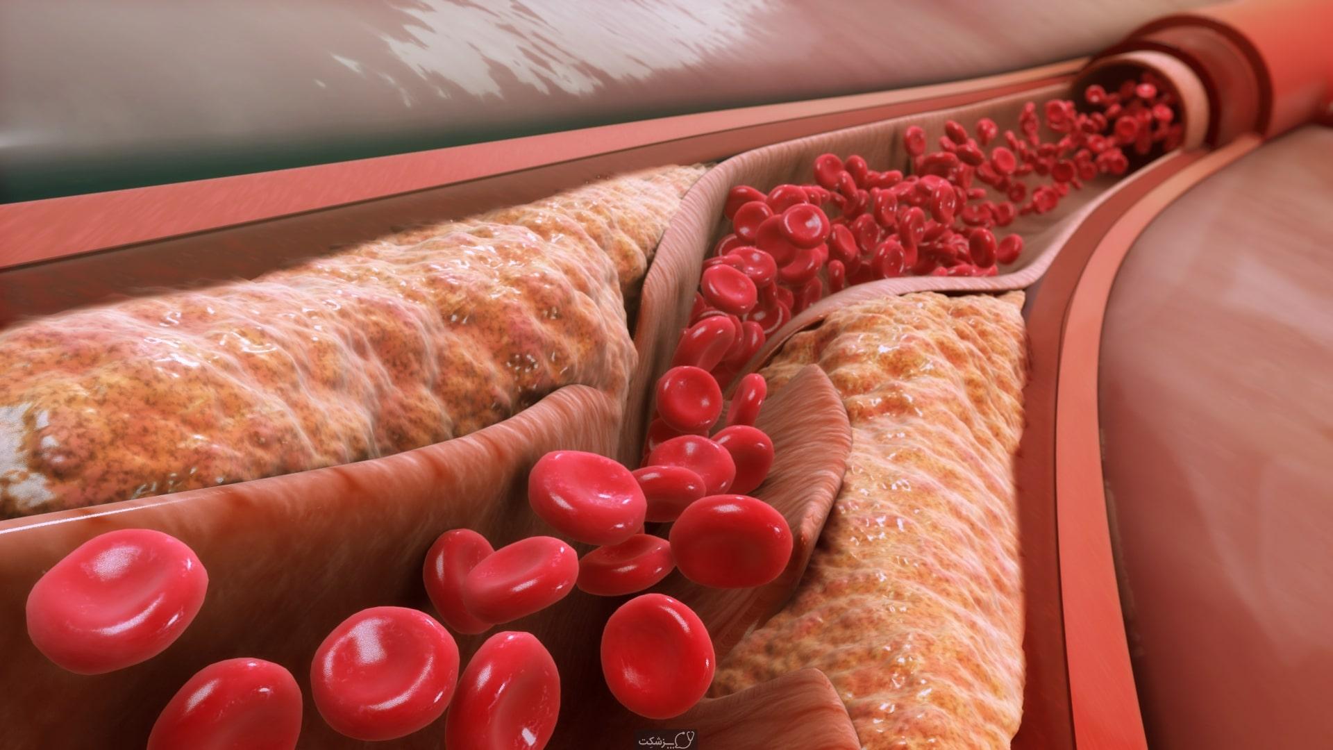 درمان طبیعی کلسترول بالای خون